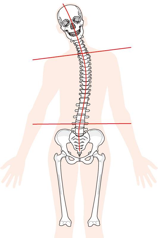 腰痛へのアプローチとは?