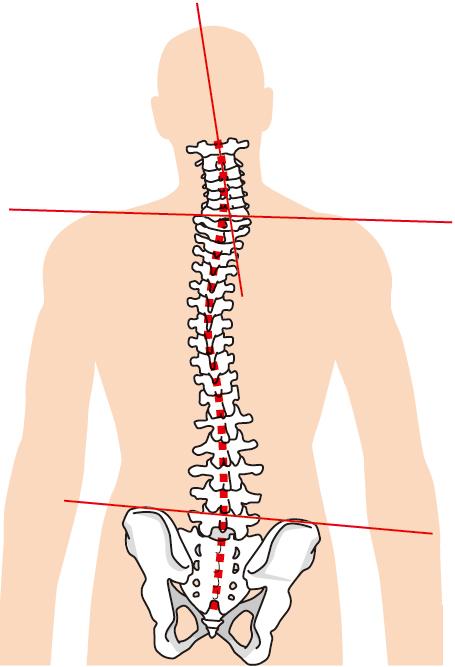 三叉神経痛への当院のアプローチ