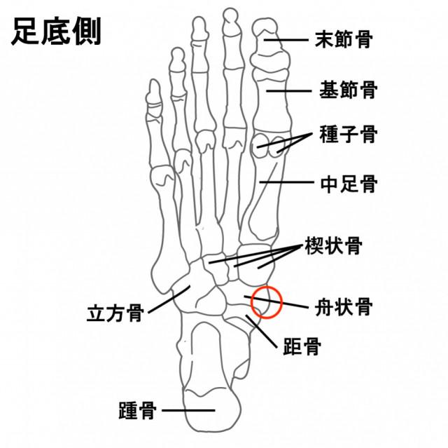 有痛性外脛骨が起こる部分